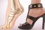 Đừng đánh đổi sức khỏe bằng sở thích đi giày cao gót