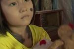 Xót xa bé gái 5 tuổi ở Cà Mau mọc đầy lông như người sói