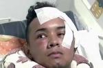Người đàn ông bị dao đâm xuyên mắt được cứu sống ngoạn mục