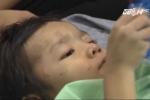 TP.HCM: Bé 4 tuổi bị mẹ đẻ và bố dượng bạo hành gãy xương đùi