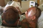 Rợn người hình ảnh võ sỹ nứt hộp sọ sau cú lên gối tàn độc
