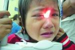 Cách phòng ngừa bệnh đau mắt đỏ
