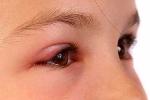 Tự điều trị đau mắt đỏ tại nhà cho trẻ: Biến chứng khôn lường!