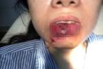 Bơm môi làm đẹp: Cô gái trẻ bị hoại tử, nguy cơ mất môi dưới