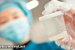 Những hình ảnh ít người biết về quá trình cấy ghép tinh trùng và sự phát triển của thai nhi