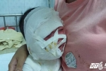 Mẹ bất cẩn, con trai 11 tháng tuổi bị cả ấm nước sôi đổ xuống đầu