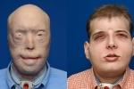 Video: Xem cận cảnh 'lột da' ghép mặt cho ca bệnh phức tạp nhất thế giới