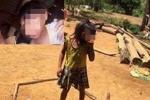 Đắk Lắk: Tiếp tục phát hiện 2 chị em đầu nhỏ nghi nhiễm virut Zika