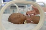 Kỳ lạ bé sơ sinh chỉ nặng...5 lạng