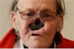 Cụ ông 'thất thập cổ lai hy' đòi trả lại khuôn mặt vì tai biến phẫu thuật mũi