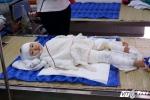 Thương tâm cháu bé bị bỏng nặng do ngã vào nước tẩy nhà vệ sinh