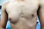 Chàng trai có 'ngực phụ nữ' nghi do ăn quá nhiều thức ăn nhanh