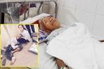 Cụ ông bị ô tô tông gãy chân rồi bỏ trốn: 'Tôi không tin là mình còn sống'