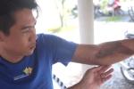 Công an xã bị tố đánh gãy tay nam thanh niên