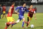'Ronaldinho Việt' vá hàng thủ tan hoang của HAGL