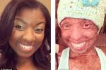 Uống thuốc động kinh, thiếu nữ suýt mất mạng