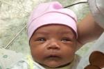Xót xa bé gái 1 tháng tuổi mang ba căn bệnh quái ác trên người