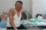 Rơi máy bay ở Hòa Lạc: Chiến sĩ duy nhất sống sót sắp được về nhà