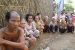 Kỳ lạ ngôi làng có hàng trăm người mù lòa ở Sóc Trăng