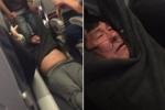Gia đình bác sỹ gốc Việt bị kéo lê khỏi máy bay Mỹ lên tiếng