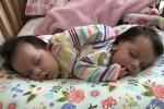 Chẩn đoán không thể sống quá 3 tháng, cặp song sinh dính liền vẫn khỏe mạnh