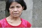 Người đàn bà xứ Nghệ bị nổi u cục toàn thân