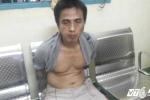 Bắt tên cướp trang sức của phụ nữ, hiệp sĩ Minh Tiến bị phơi nhiễm HIV