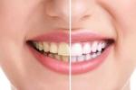 'Thủ phạm' không ngờ phá hoại hàm răng