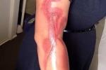 iPhone 7 làm bỏng tay một phụ nữ mang bầu
