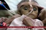 Ám ảnh khôn cùng khi xem bức ảnh bé trai chết đói ở Yemen