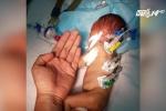 Bác sĩ căng mình trong ca mổ tim cho bé sơ sinh nhỏ bằng bàn tay