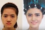 Cô gái Nam Định 'lột xác' ngoạn mục sau phẫu thuật