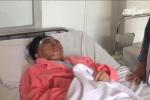 Cãi nhau với hàng xóm, cả nhà bị tạt axit: Cô gái 23 tuổi có nguy cơ bị mù