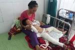 Nghịch xăng, bé trai 4 tuổi bị bỏng nặng