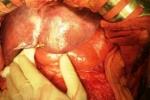 1/3 số ca ung thư là do 'từ miệng vào'