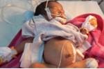 Bé sinh non nhiễm trùng được cứu sống nhờ truyền dịch qua cuống rốn
