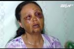 Bị đánh nhập viện vì nghi bắt cóc trẻ em: Người phụ nữ bán tăm nhớ lại phút kinh hoàng
