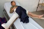 Học sinh lớp 2 Tiểu học Nam Trung Yên bị gãy chân: Đã có kết quả giám định thương tật