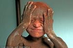 Cậu bé 'hóa đá' vì mắc bệnh da liễu hiếm gặp