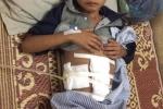 Cậu bé 10 tuổi bị trâu húc vỡ ruột non ở Yên Bái