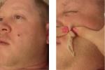 Video: Rùng mình cảnh vợ nặn mụn khổng lồ trên mặt chồng