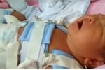 Thông tin mới nhất vụ trẻ sơ sinh bị gãy đùi do bác sỹ mổ đẻ