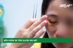 Biến chứng đáng sợ do tiêm silicon làm đẹp vùng mắt