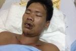Tìm người nhà bệnh nhân chấn thương sọ não, hôn mê sau tai nạn giao thông
