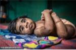 Hình ảnh gia đình 'người sói' kỳ lạ ở Ấn Độ