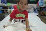 Bé 4 tuổi mất hai chân do sạt lở đất ở Sơn La: Tiếp tục cắt da hoại tử