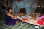 Người đàn ông mắc bệnh lạ bị ăn hết khuôn mặt: Vợ đau đớn mong chồng sớm được 'ra đi'