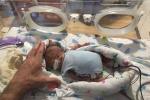 Hy hữu: Cứu sống em bé sinh non nặng chưa tới 5 lạng