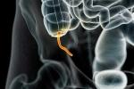 Lợi ích không thể ngờ của ruột thừa với hệ miễn dịch