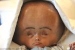 Bé gái não úng thủy qua đời sau 8 cuộc phẫu thuật trong 4 năm